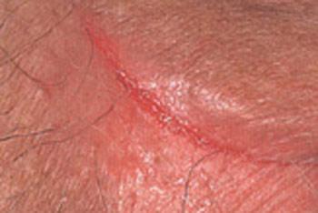 Как лечить внутренний кровоточащий геморрой